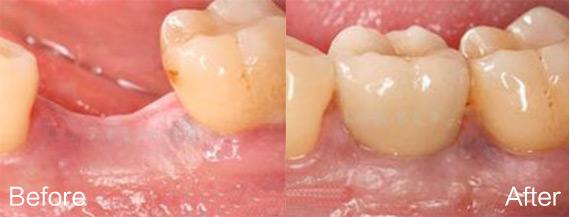 种植牙修复单颗牙齿